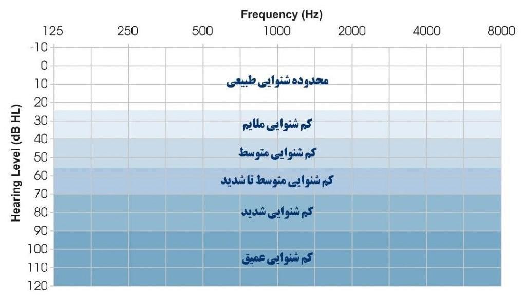 نمودار شنوایی در شنوایی سنجی یا ادیومتری
